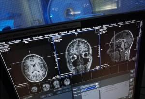 Imagens de ressonância magnética do cérebro humano. Crédito: Jan-Peter Kasper/FSU