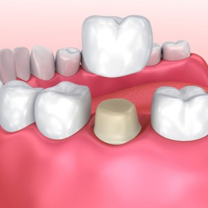 questions about dental crowns devine