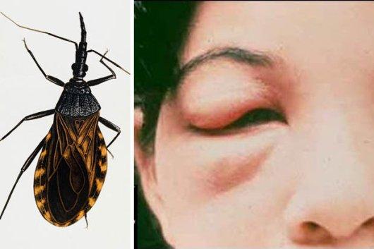 China Memberikan Rp 30.000 Untuk Menangkap Serangga Mematikan
