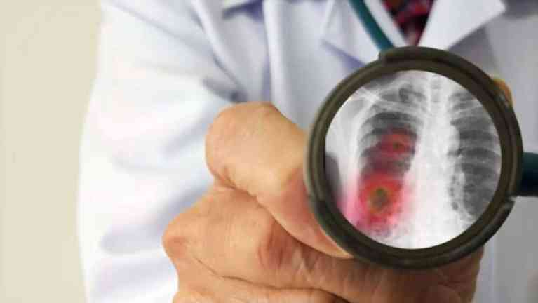 Pneumonia Affect The Digestive System