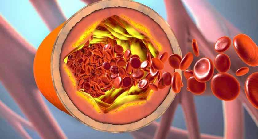 How Does Cholesterol Metabolism Affect Our Health?