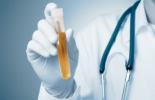 Cholesterol Crystal In Urine - Diagnosis And Preventive Methods