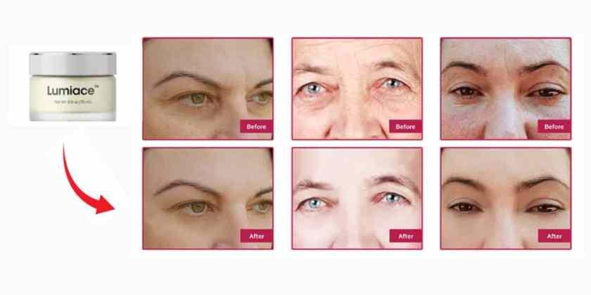 Lumiace Eye Cream Results