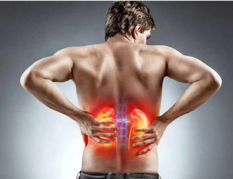 Does Kidney Stone Leads To Kidney Failure