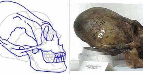 Cranii alungite din Peru relevă o specie umanoidă necunoscută (2)
