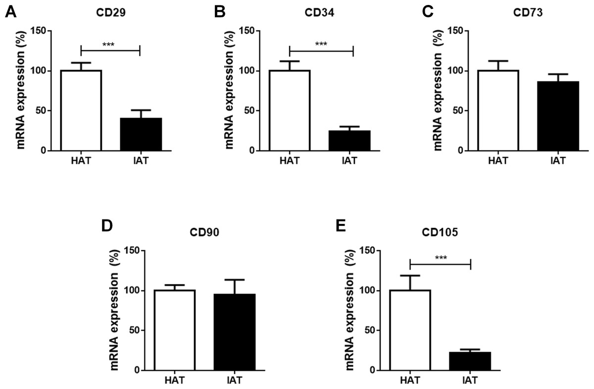Characterization Of Adipose Tissue Macrophages And Adipose