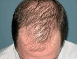 androgenetic-alopecia