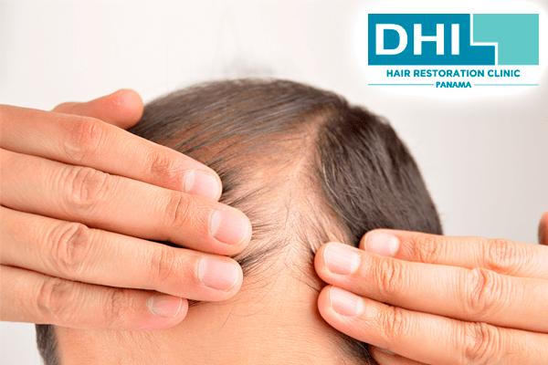 Alopecia Hereditaria - DHI Panama