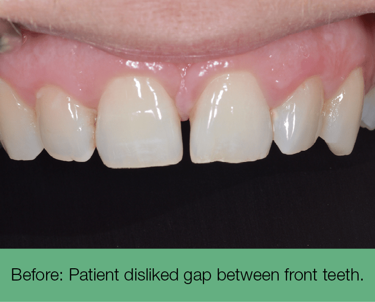 1. before - patient disliked gap between front teeth