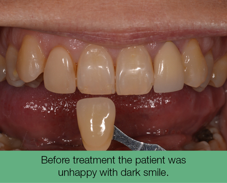 1. before treatment