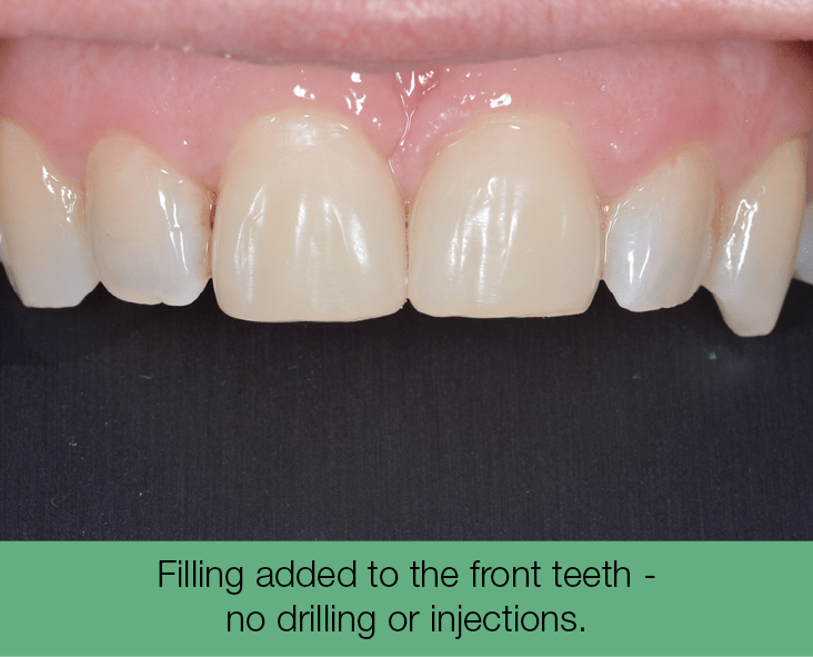2. Filling added to the front teeth - no drilling or injections