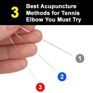 acupuncture for tennis elbow