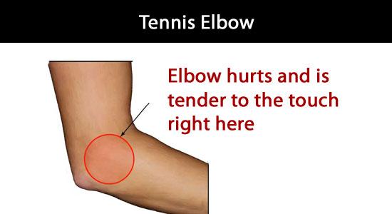 elbow hurts when asleep