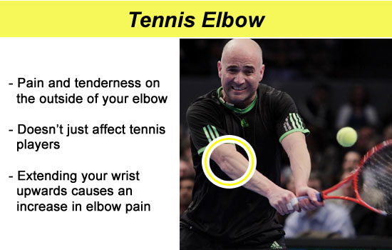 injured tennis elbow