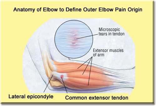 Erase Outer Elbow Pain Fast In Just 5 Steps ...