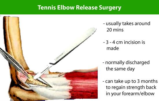 Tennis Elbow Surgery