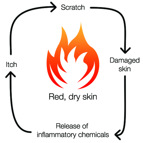 Itchy Skin and Diabetes - Itchiness in Legs, Feet, Ankles
