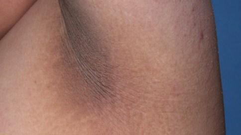 Här ser vi onormalt mörk hud i en armhåla. Personen har diabetes.