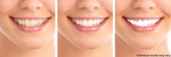 Alta_ White_Teeth_Whitening_formula