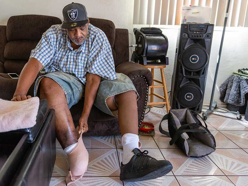 Jackson Moss lost part of his right foot due to a complication of diabetes. He is trying to save the rest of it with the help of his wife, Bernadette. (Heidi de Marco/KHN)