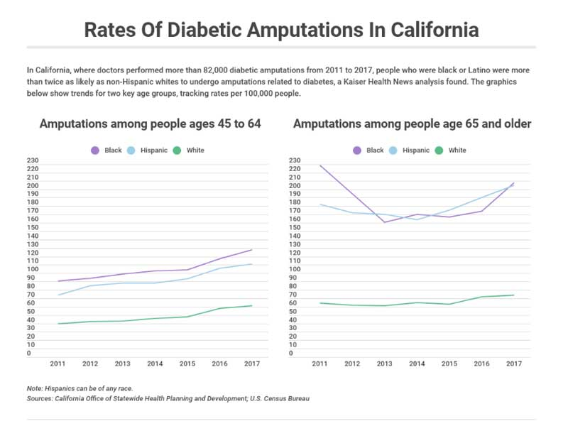 Rates of diabetes amputations in California