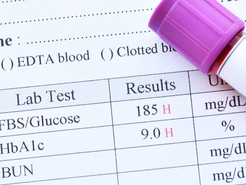amputación diabetes 2020 nfl