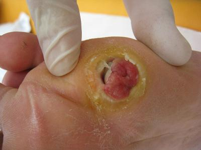 Researchers explain why some wound infections become chronic?