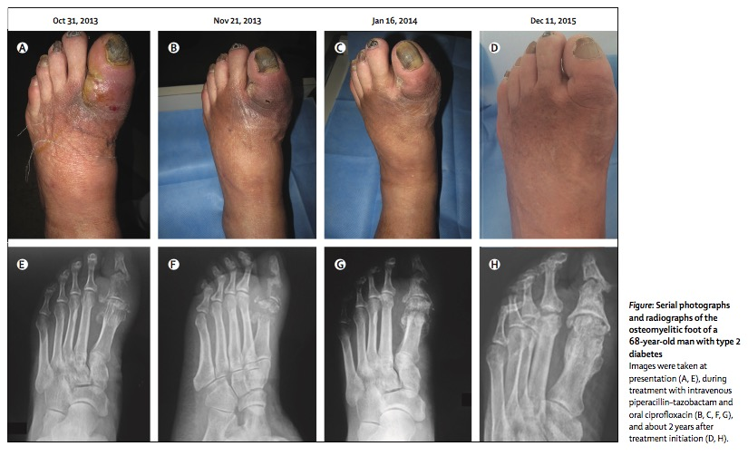 Think all diabetic foot osteomyelitis needs surgery?