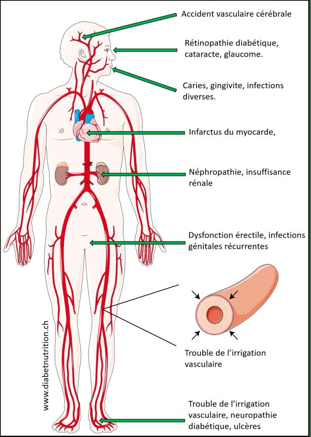 diabète, complications, AVC, infarctus, néphropathie