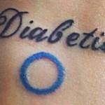diabète, tatouages, tatoueur, encre, derme, chéloïde
