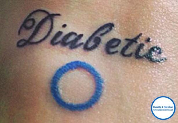 diabète, tatouages, tatoueur, encre, derme, chéloïde, risques, cercle bleu