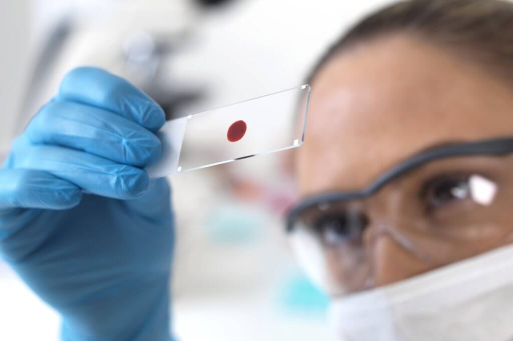 Что такое группа крови и где ее можно узнать