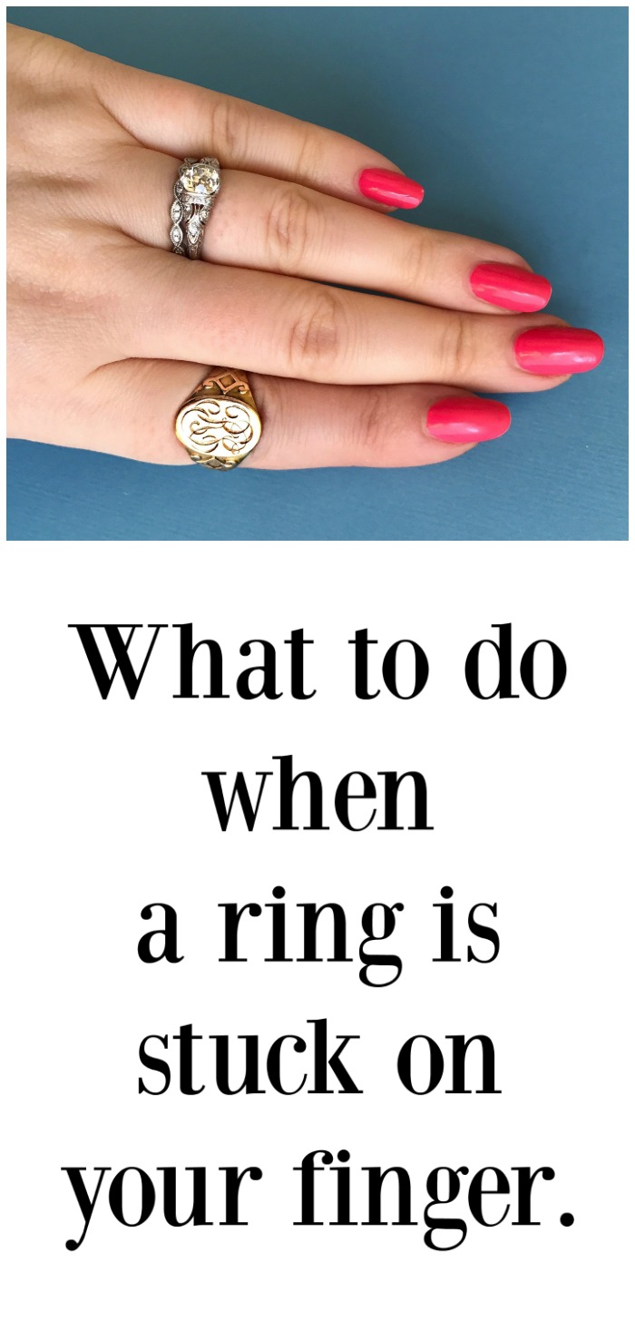 What to do if a ring is stuck on your finger. Tips and tricks to try at home, and what to expect if the ring needs to be cut off of you.