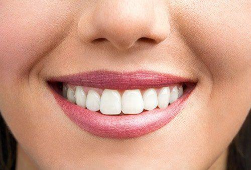 Pentru un zâmbet perfect alege Prolident!