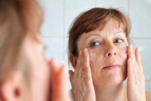 Melasma, pregnancy mask. skin lightning cream