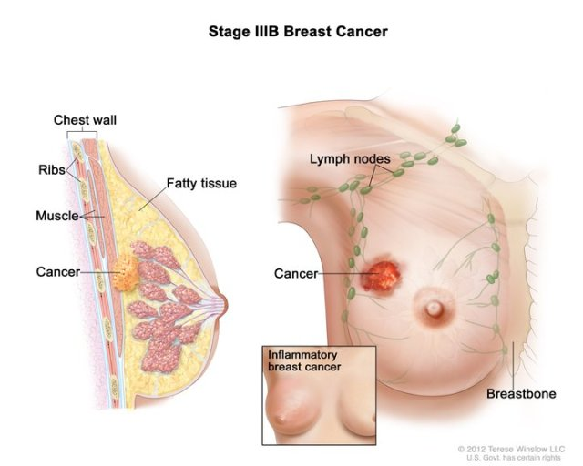 Breast Cancer lump and symptoms