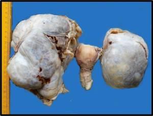 Ovarian Cancer. symptoms of ovarian cancer