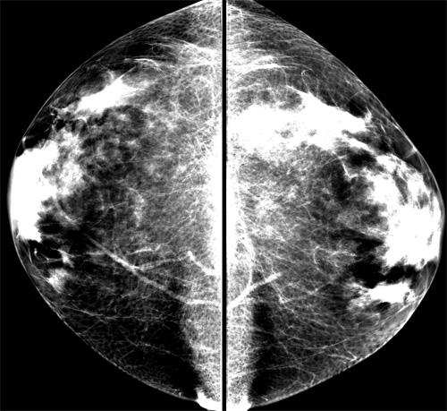 Can you see a smiley face in my mammogram, too?