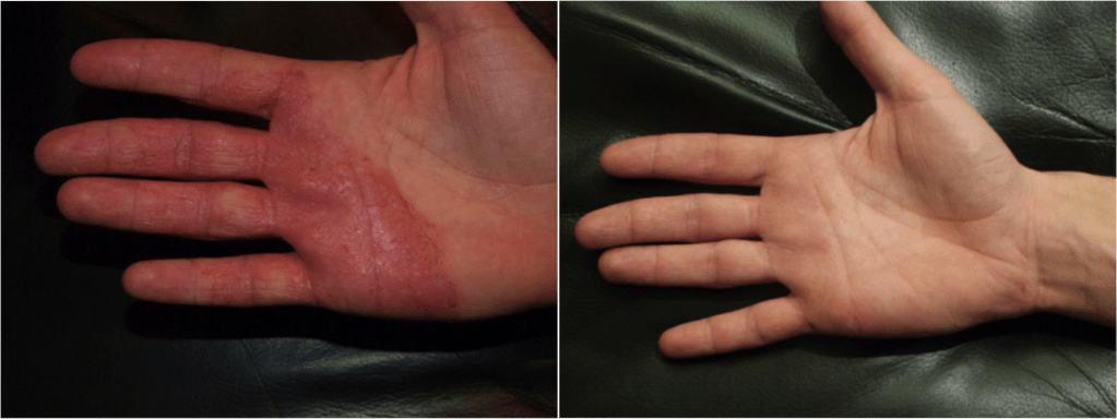 Dermalux dermatitis