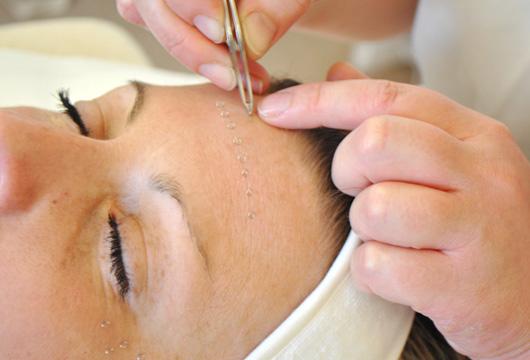 intradermal facial acupuncturex