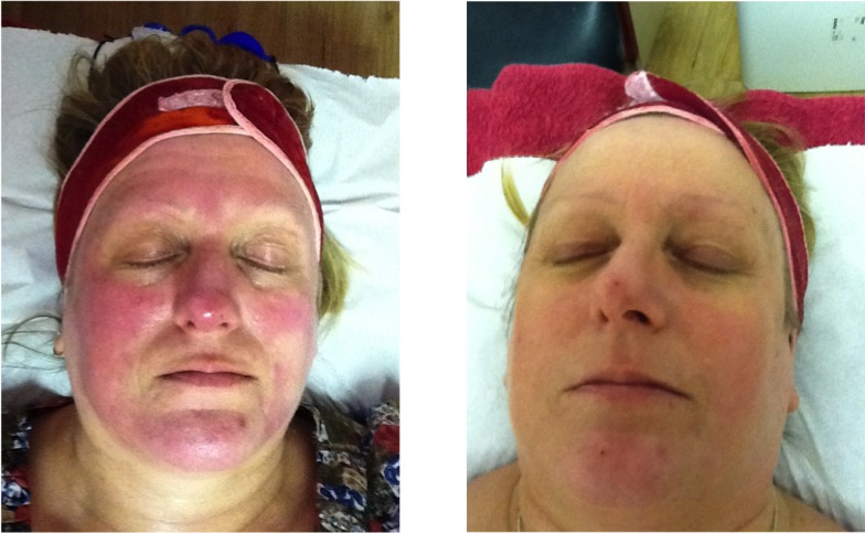 rosacea treatment dermalux