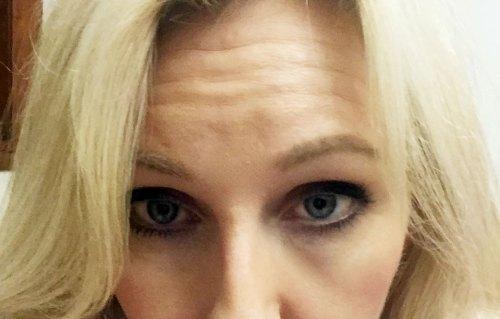 "non-invasive cosmetics procedures ""before shot"""