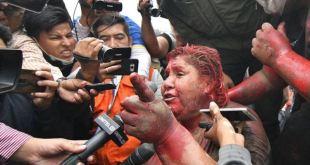 """CIDH concede protección a alcaldesa y """"defensores del pueblo"""" en Bolivia 3"""