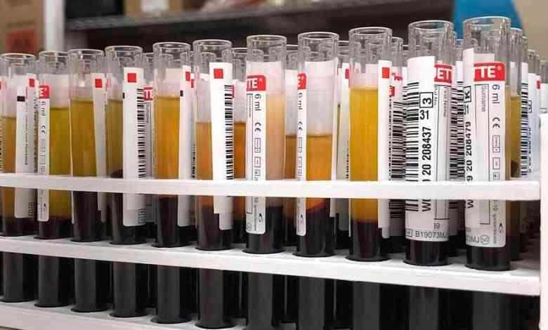 OMS: Tratamiento con dexametasona reduce un tercio mortalidad del Covid-19 1