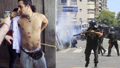 Photo of Fotógrafo recibió 10 balazos de goma en los incidentes
