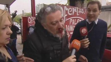 Photo of La policía arrestó al acosador de Lomas del Mirador
