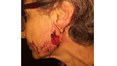 Photo of Una mujer fue atacada por los pitbull de su vecino y le arrancaron parte de la oreja