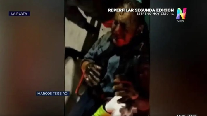 Horror en La Plata: prendieron fuego a un sintecho