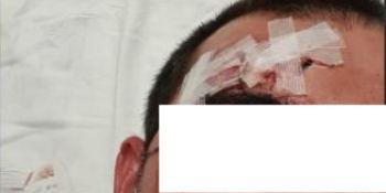 3 extranjeros agreden en Santander a un camionero al intentar robarle el móvil