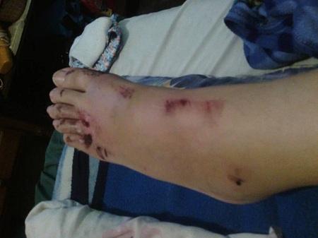 Hueco en la Panamericana casi cobra su tercera víctima falta